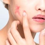 Problema de la piel